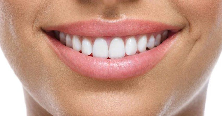Zbardhoni dhëmbët tuaj në kushte shtëpie