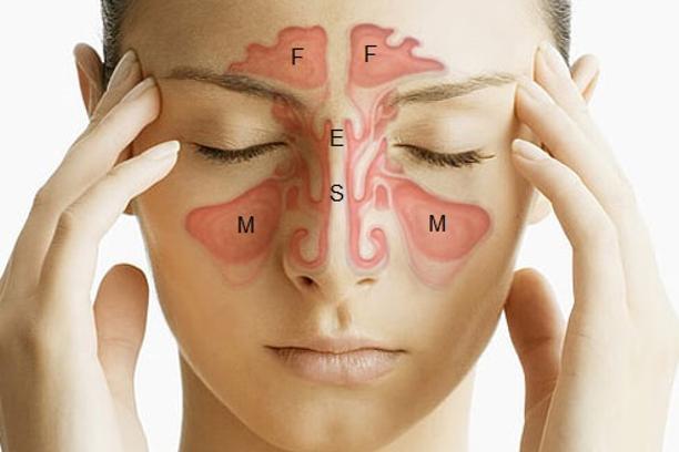 Shkaktarët e panjohur të sinusit, keni kujdes në këto raste