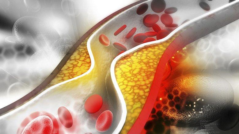 Medikamenti i ri për uljen e kolesterolit