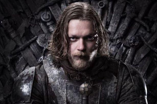 """Ndërron jetë aktori i """"Game of Thrones"""""""